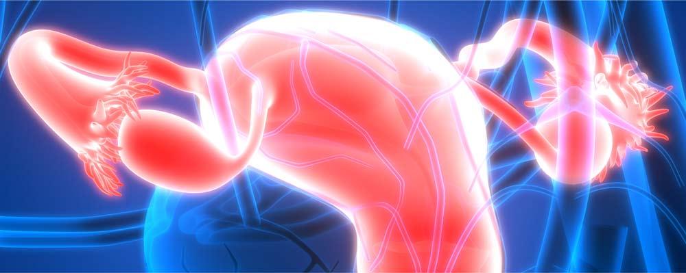 cancer des ovaires définition